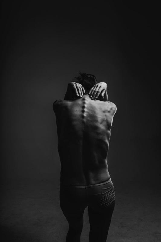 schwarz-weiß Frauenrücken mit sichtbarer Wirbelsäule, sehr dünn